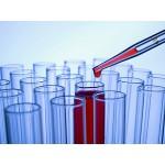 Läkarundersökning vid användning av steroider